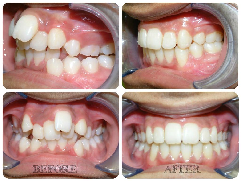 Uncategorized Uttam Dental Clinic